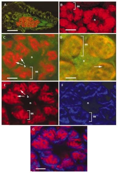 """Microscopía confocal de las """"vesículas simbióticas"""". A) Color rojo, hibridación con """"sonda para todas las bacterias"""", resaltan los """"bacteriomas"""". En verde, la fluorescencia natural del abdomen del insecto. B) Ampliación dónde podemos ver un """"bacteriocito"""" con su núcleo central (n) y las """"esferas simbióticas"""" (ss). C) Uso único de la sonda para γ-proteobacterias (b), estas aparecen en rojo y como era de esperar, aparecen dentro de las """"esferas simbióticas""""; en verde la fluorescencia natural. D) Uso único de la sonda para β-proteobacterias, estas aparecen en anaranjado y curiosamente, aparecen como la """"matriz"""" de la """"esfera simbiótica""""; en verde la fluorescencia natural. E) Uso combinado de las sondas para γ y β-proteobacterias, con iluminación exclusiva para γ-proteobacterias; como era de esperar, vuelven a aparecer como los glomérulos interiores de la """"esfera simbiótica"""". F) Uso combinado de las sondas para γ y β-proteobacterias, con iluminación exclusiva para β-proteobacterias; mirad bien, estas últimas aparecen de nuevo como la """"matriz"""" que envuelve a las γ-proteobacterias. G) Uso combinado de las sondas para γ y β-proteobacterias, con iluminación para los dos... juzguen ustedes mismos. Crédito: Ref. 3."""