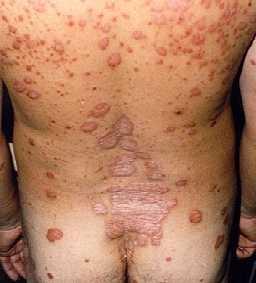 Como es a menudo posible bañarse a la psoriasis