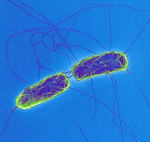 Salmonella typhi, principal causante de la fiebre tifoidea