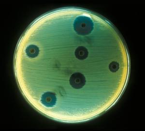 """Unos bonitos """"virus aureus"""" formando sus colonias en una placa petri"""