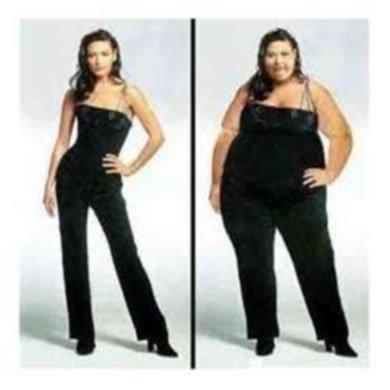 Blaines para bajar de peso antes y despues de las cirugias