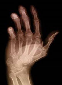 Radiografía de una mano afectada por artritis reumatoide