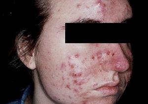 Caso severo de acné (inténtalo con una duchita ionizada...)