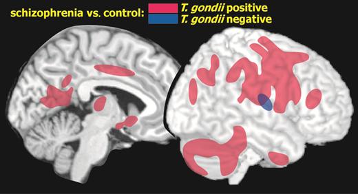 toxoplasma gondii esquizofrenia resonancia magnetica diario de un ateo toxoplasmosis cerebro