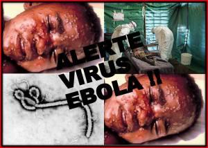 alerta ebola virus