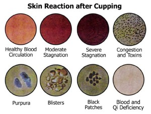 Skin-reaction cupping chinese
